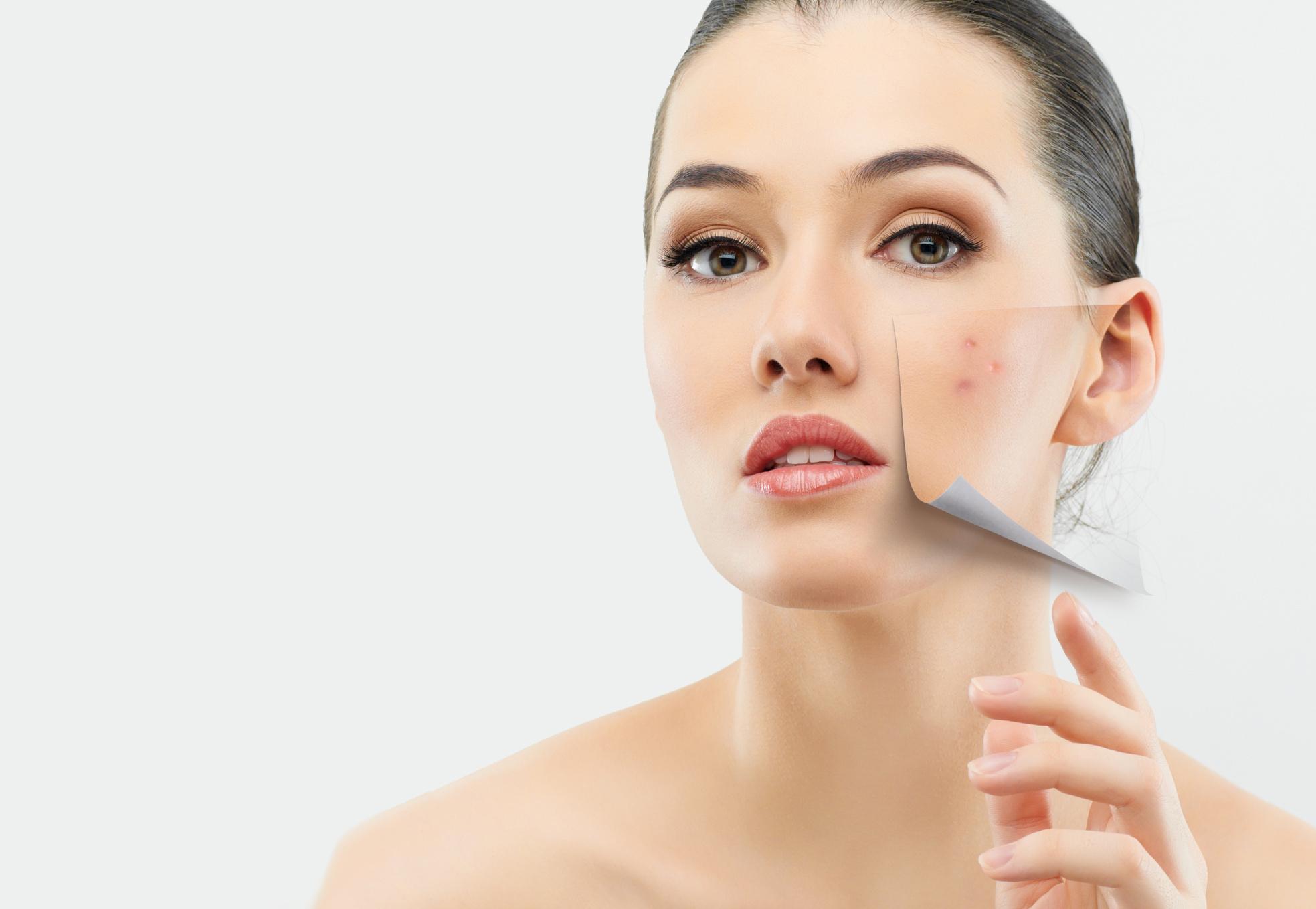 Erste Hilfe Für Unreine Haut Beautynews