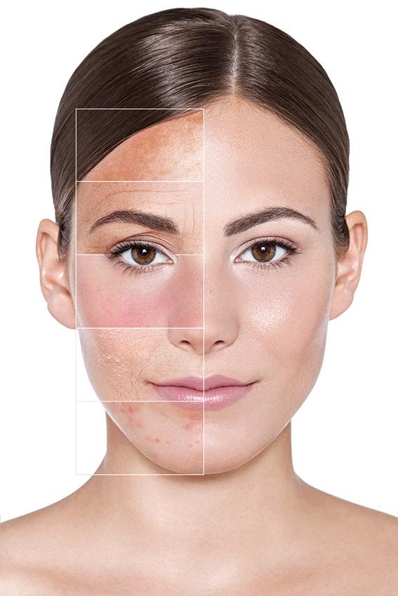 Hautberatung